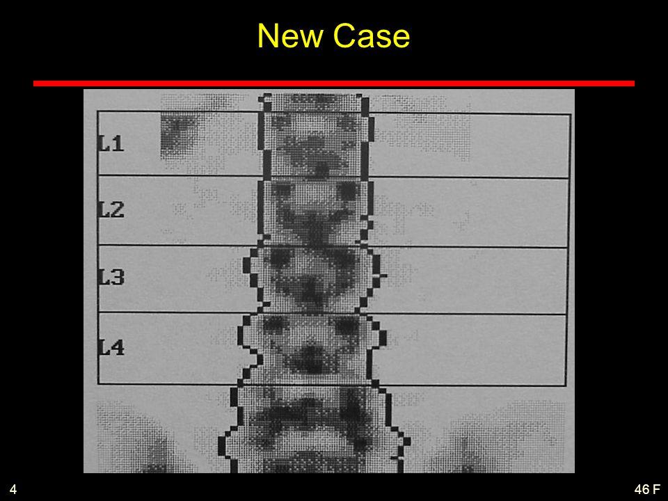 46 F4 New Case