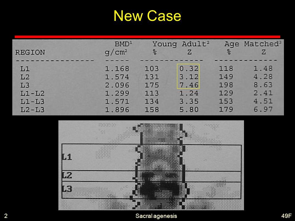 Sacral agenesis T 49F2 New Case
