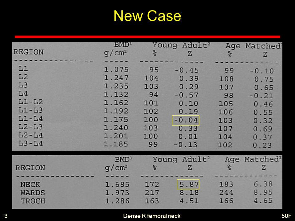 Dense R femoral neck50F3 New Case