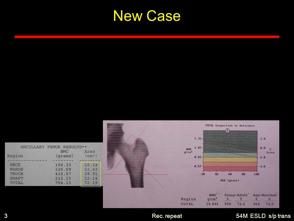 54M ESLD s/p transRec. repeat3 New Case