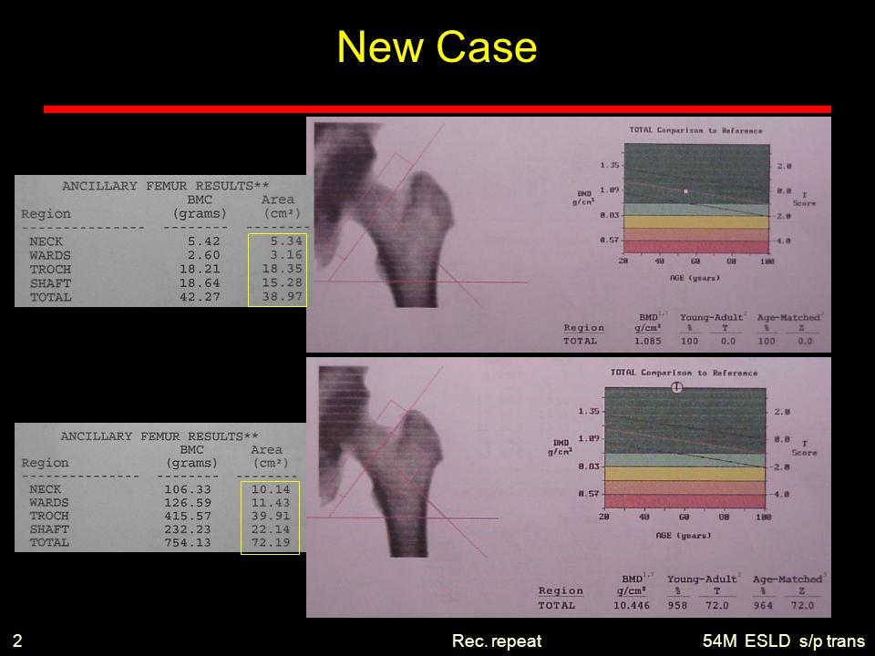 54M ESLD s/p transRec. repeat2 New Case