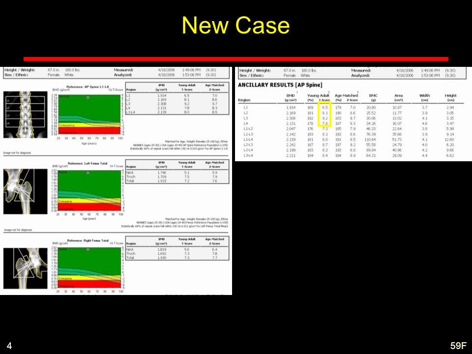 59F4 New Case