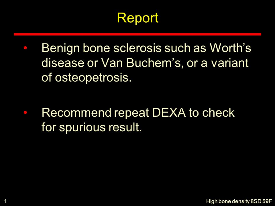 Report Benign bone sclerosis such as Worth's disease or Van Buchem's, or a variant of osteopetrosis. Recommend repeat DEXA to check for spurious resul