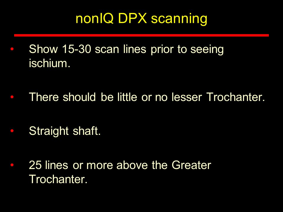 nonIQ DPX scanning Show 15-30 scan lines prior to seeing ischium. There should be little or no lesser Trochanter. Straight shaft. 25 lines or more abo