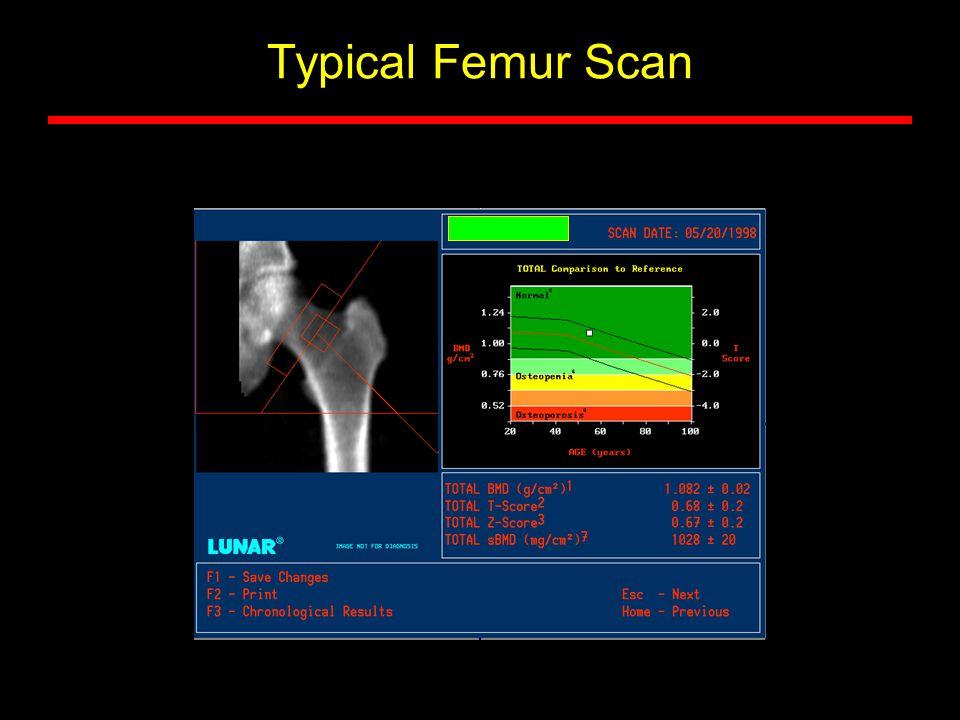 Typical Femur Scan