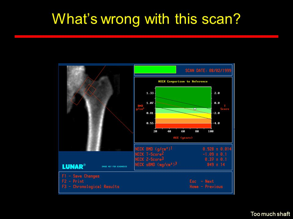 What's wrong with this scan? Too much shaft