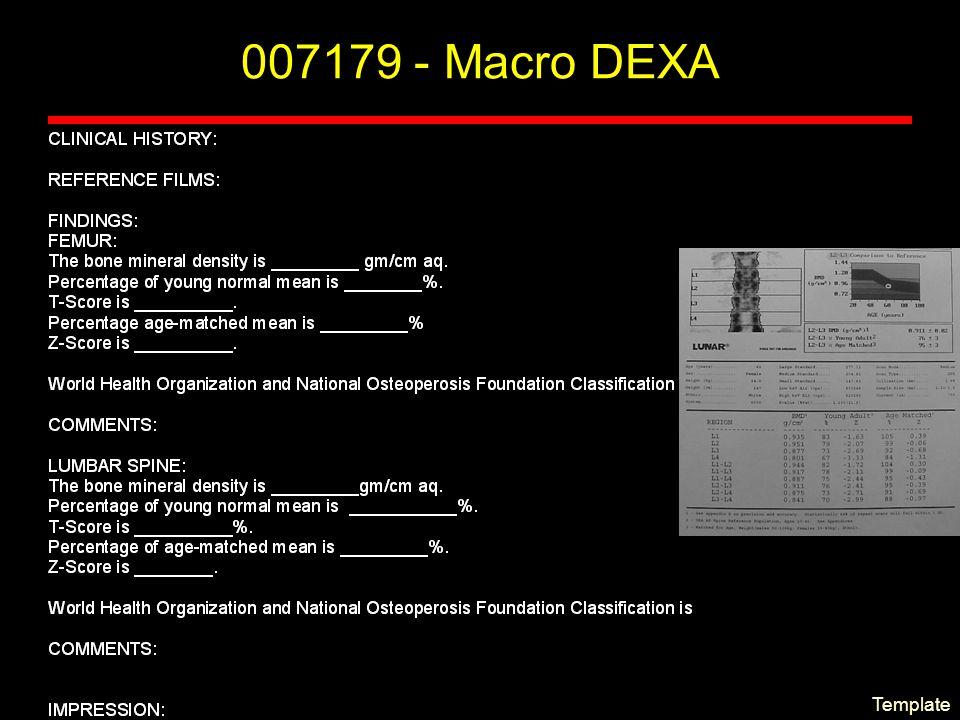 Template 007179 - Macro DEXA