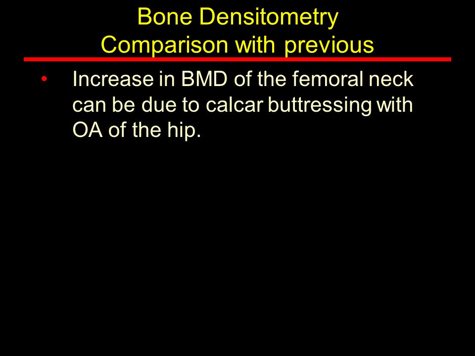 Bone Densitometry Comparison with previous Increase in BMD of the femoral neck can be due to calcar buttressing with OA of the hip.
