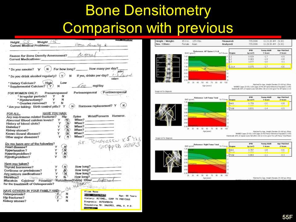 Bone Densitometry Comparison with previous 55F