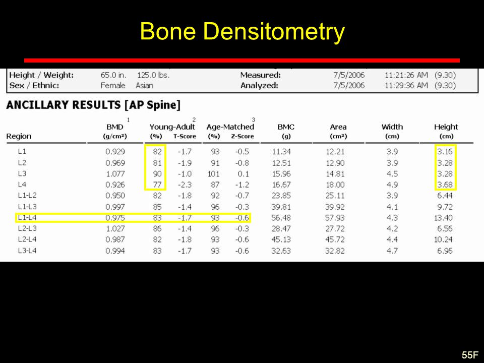 Bone Densitometry 55F
