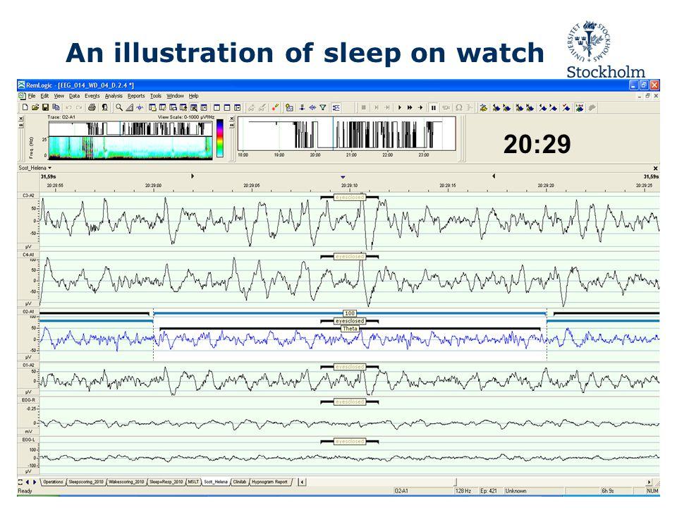 20:29 An illustration of sleep on watch