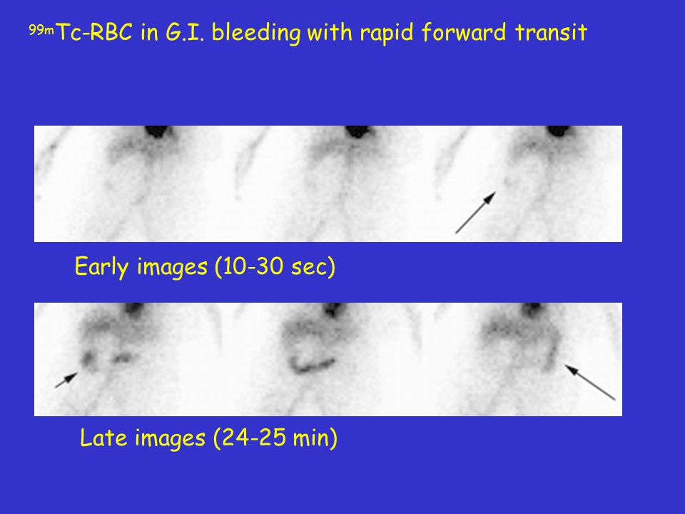 99m Tc-RBC in G.I. bleeding with rapid forward transit Early images (10-30 sec) Late images (24-25 min)