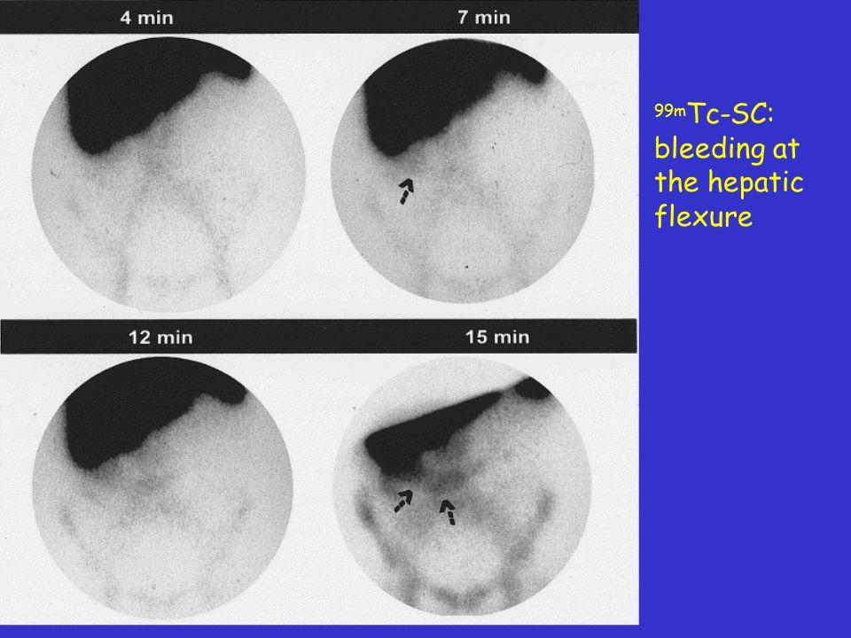 99m Tc-RBC in G.I. minimal bleeding 10-40 sec 26-29 min 79-82 min 162-165 min