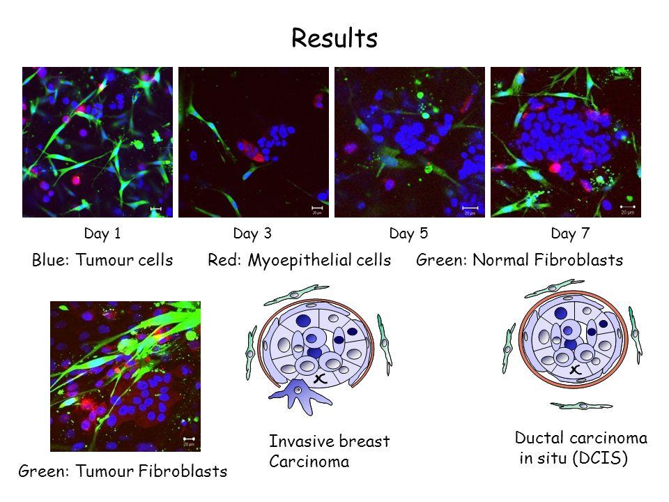 Quantifying the model 0 1 2 3 4 5 6 7 8 9 10 lum/myo/Nfib mcf/myo/TAF number of structures per field * Normal Fibroblasts Tumour Fibroblasts Normal Fibroblasts Tumour Fibroblasts