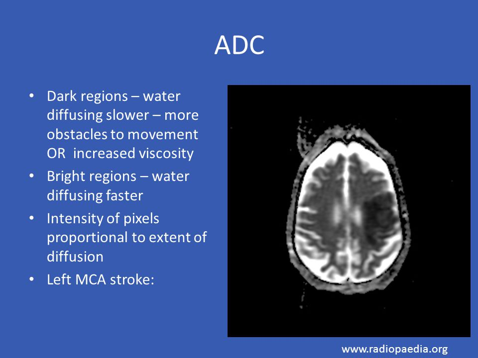 ADC Dark regions – water diffusing slower – more obstacles to movement OR increased viscosity Bright regions – water diffusing faster Intensity of pix