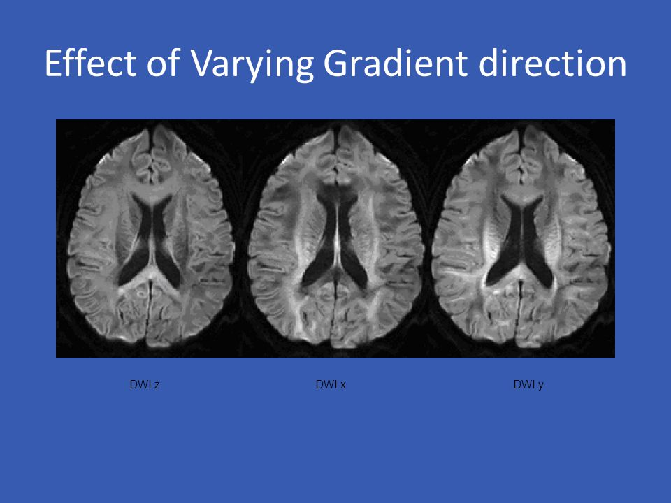Effect of Varying Gradient direction DWI z DWI x DWI y