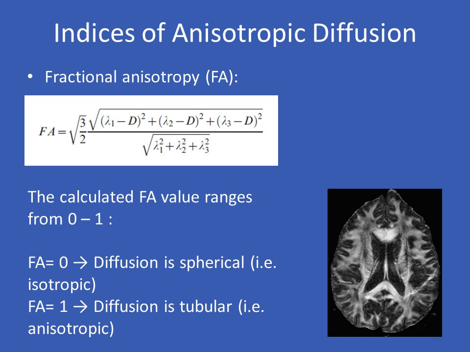 Indices of Anisotropic Diffusion Fractional anisotropy (FA): The calculated FA value ranges from 0 – 1 : FA= 0 → Diffusion is spherical (i.e. isotropi