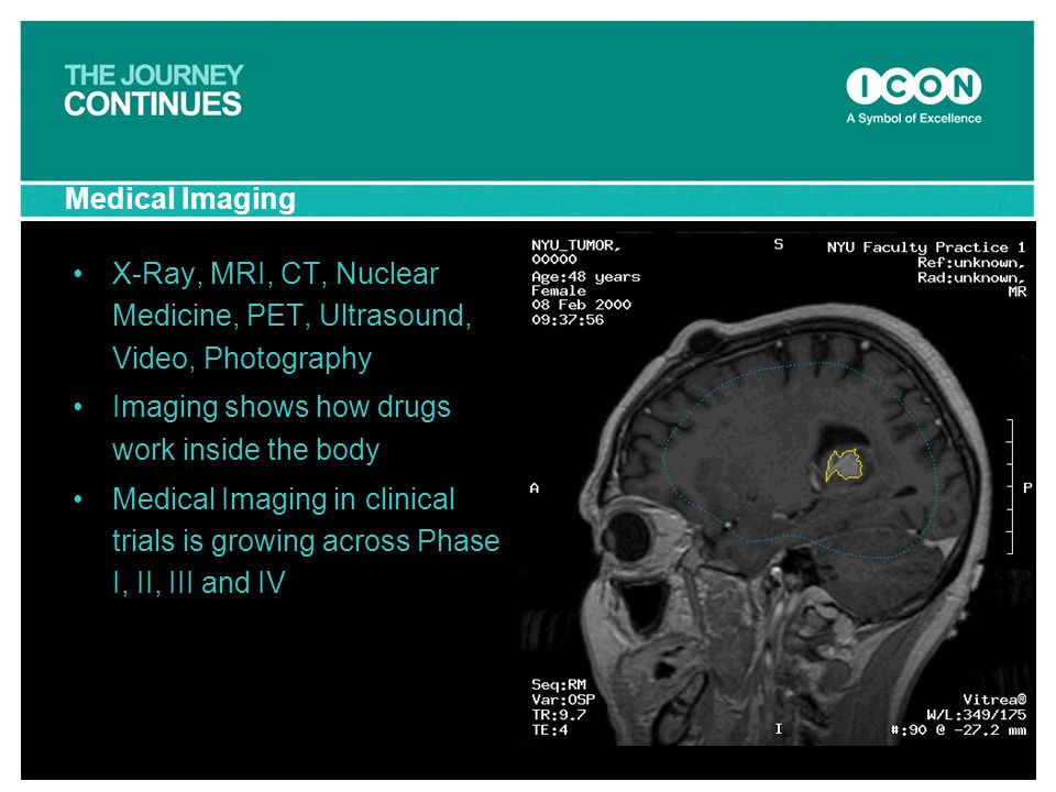 Medical Imaging X-Ray, MRI, CT, Nuclear Medicine, PET, Ultrasound, Video, Photography Imaging shows how drugs work inside the body Medical Imaging in