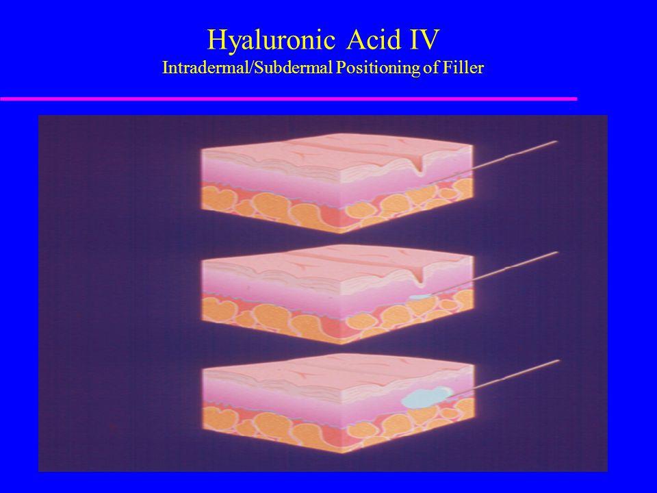 Hyaluronic Acid IV Intradermal/Subdermal Positioning of Filler