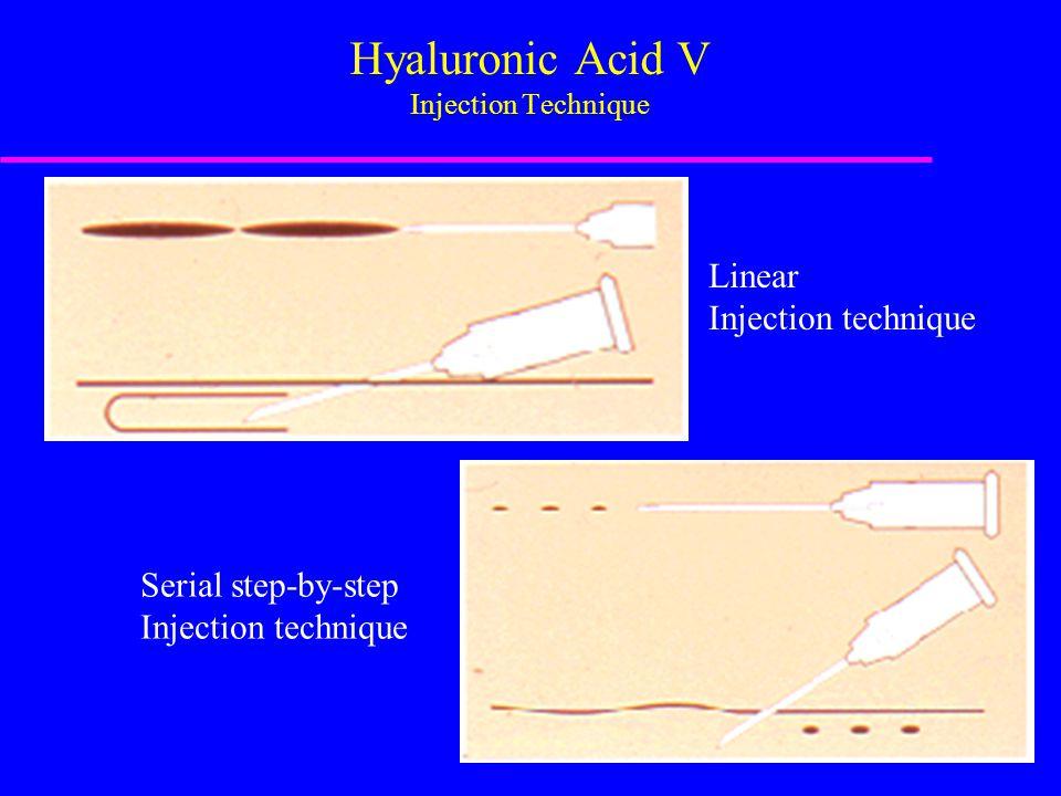 Hyaluronic Acid V Injection Technique Linear Injection technique Serial step-by-step Injection technique