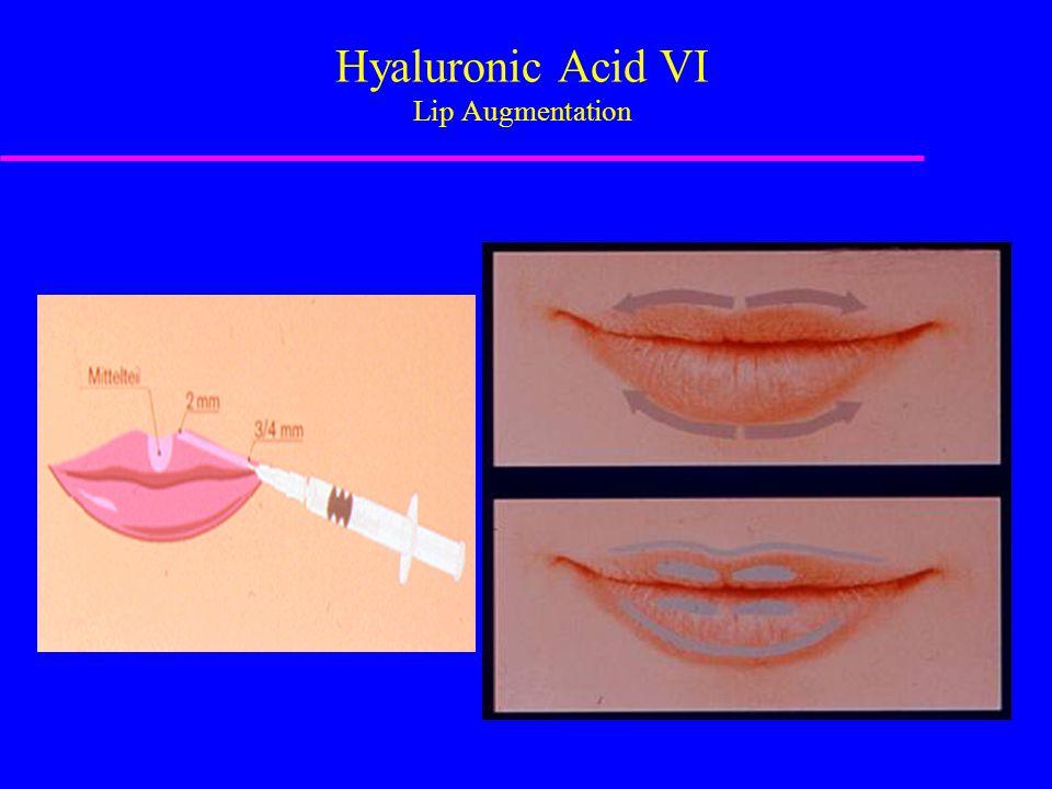 Hyaluronic Acid VI Lip Augmentation
