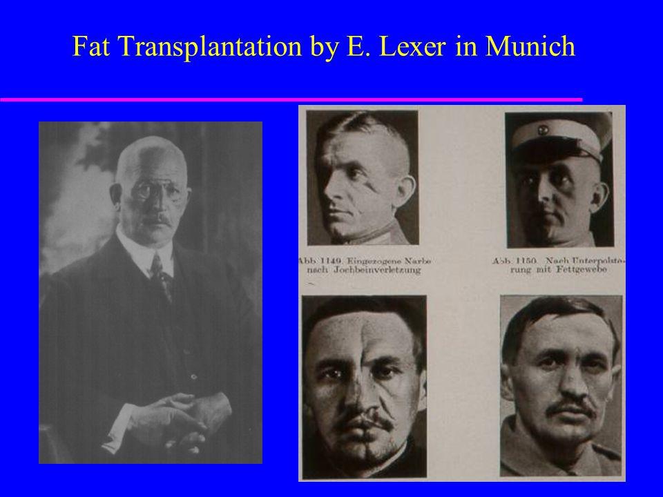 Fat Transplantation by E. Lexer in Munich