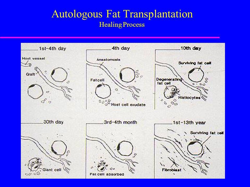 Autologous Fat Transplantation Healing Process