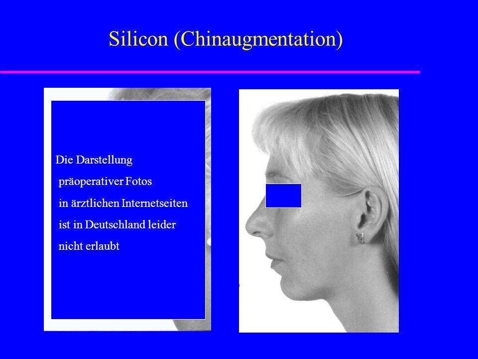 Silicon (Chinaugmentation) Die Darstellung präoperativer Fotos in ärztlichen Internetseiten ist in Deutschland leider nicht erlaubt Die Darstellung präoperativer Fotos in ärztlichen Internetseiten ist in Deutschland leider nicht erlaubt