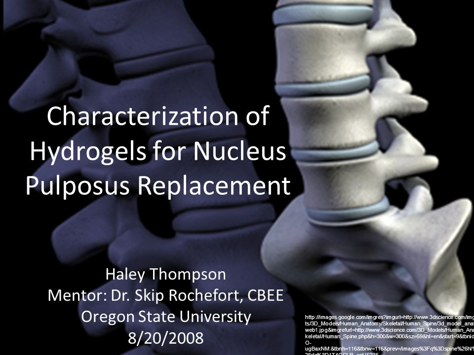 Characterization of Hydrogels for Nucleus Pulposus Replacement Haley Thompson Mentor: Dr. Skip Rochefort, CBEE Oregon State University 8/20/2008 http: