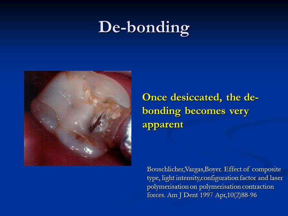 De-bonding Once desiccated, the de- bonding becomes very apparent Bouschlicher,Vargas,Boyer.Effect of composite type, light intensity,configuration fa
