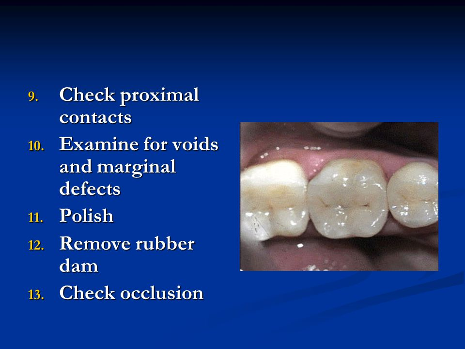 9. Check proximal contacts 10. Examine for voids and marginal defects 11. Polish 12. Remove rubber dam 13. Check occlusion
