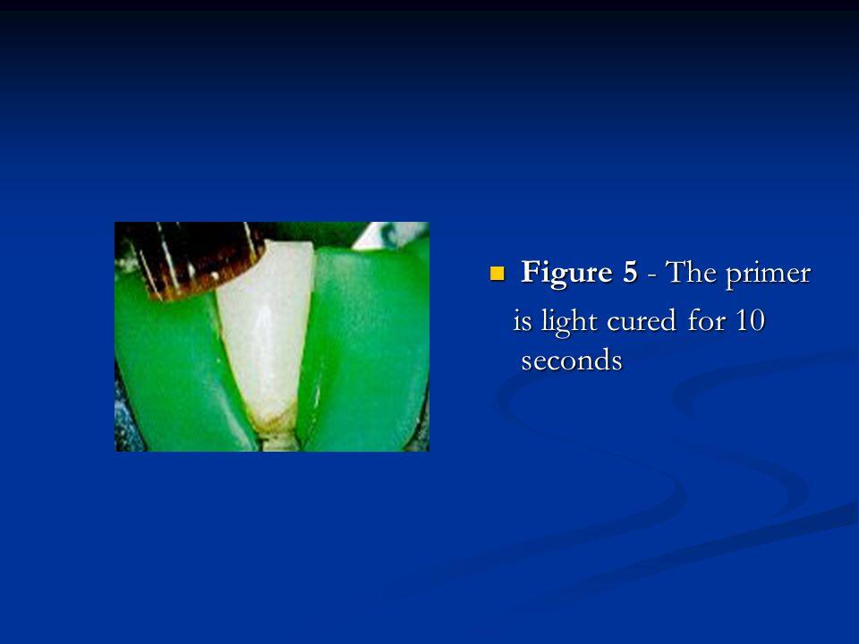 Figure 5 - The primer Figure 5 - The primer is light cured for 10 seconds is light cured for 10 seconds