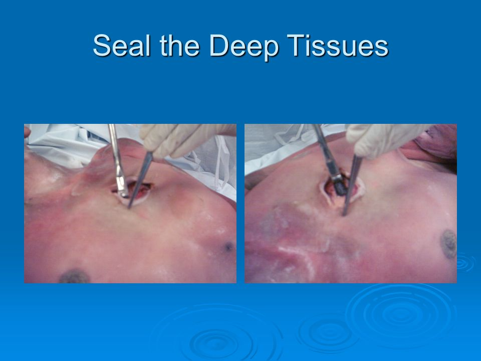 Seal the Deep Tissues