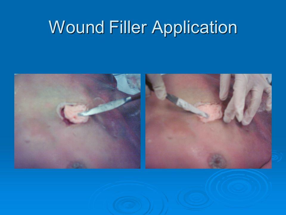 Wound Filler Application