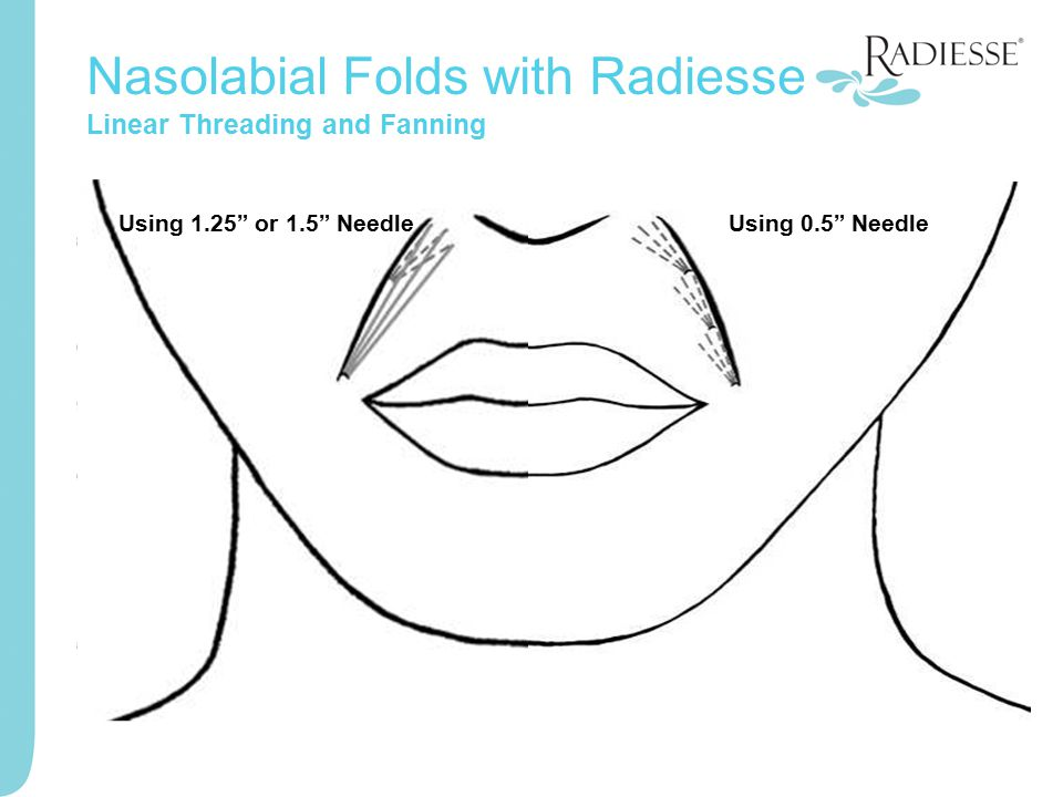 "Nasolabial Folds with Radiesse Linear Threading and Fanning Using 1.25"" or 1.5"" NeedleUsing 0.5"" Needle"