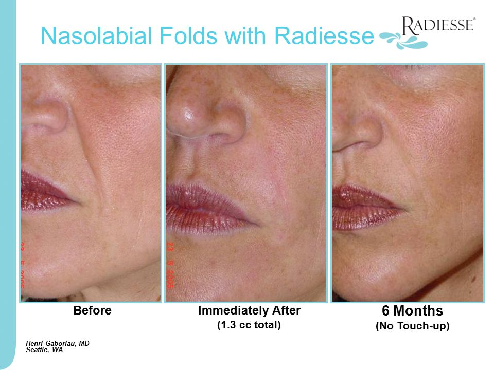 BeforeImmediately After (1.3 cc total) Nasolabial Folds with Radiesse Henri Gaboriau, MD Seattle, WA 6 Months (No Touch-up)