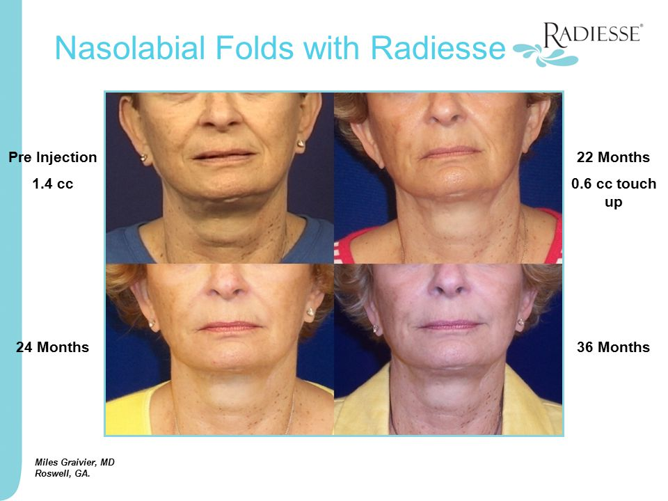 Miles Graivier, MD Roswell, GA. Pre Injection 1.4 cc 22 Months 0.6 cc touch up 24 Months36 Months Nasolabial Folds with Radiesse