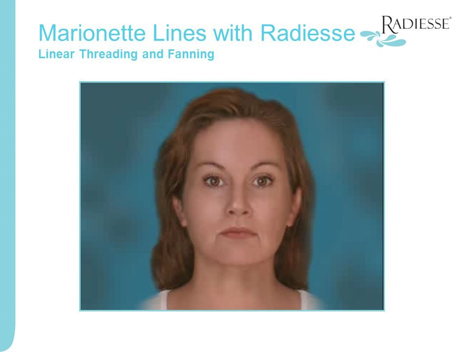Marionette Lines with Radiesse Linear Threading and Fanning