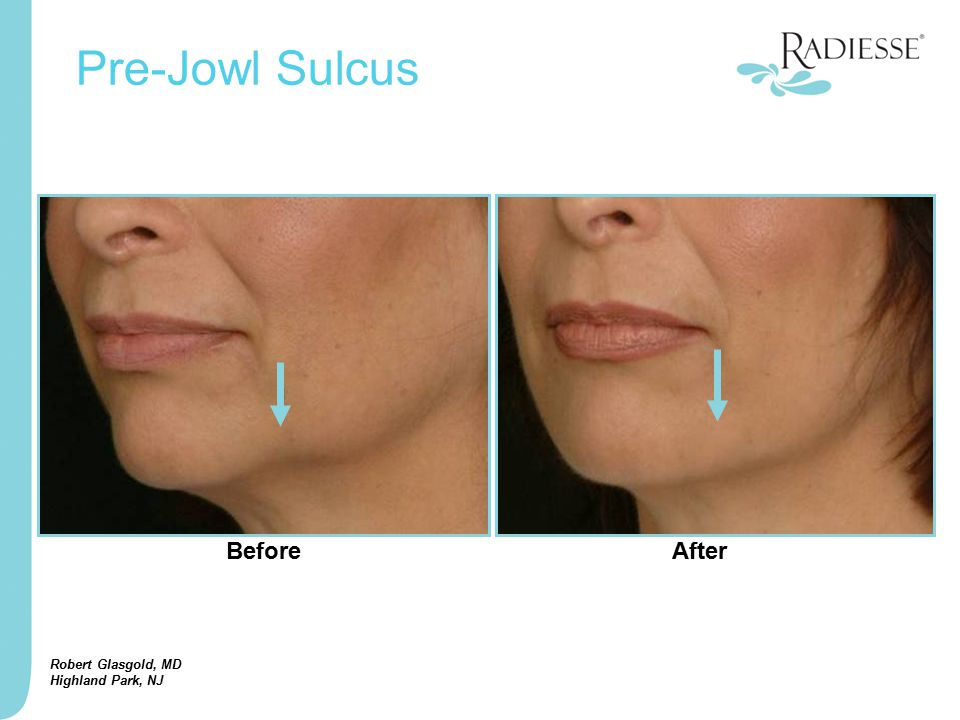 Robert Glasgold, MD Highland Park, NJ Pre-Jowl Sulcus BeforeAfter