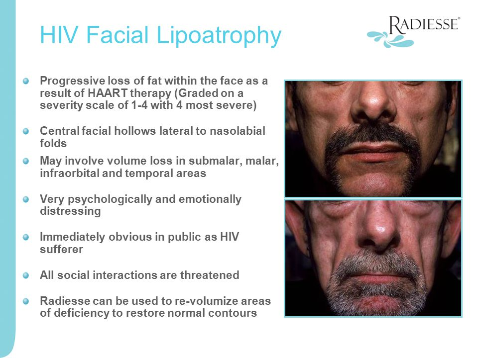 Progressive loss of fat within the face as a result of HAART therapy (Graded on a severity scale of 1-4 with 4 most severe) Central facial hollows lat