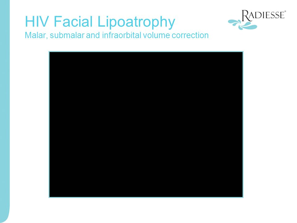HIV Facial Lipoatrophy Malar, submalar and infraorbital volume correction