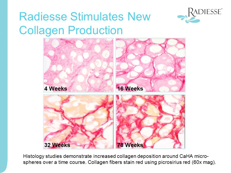 Radiesse Stimulates New Collagen Production 32 Weeks78 Weeks 16 Weeks4 Weeks Histology studies demonstrate increased collagen deposition around CaHA m