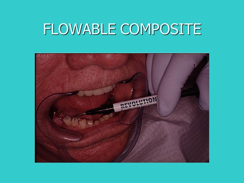 FLOWABLE COMPOSITE