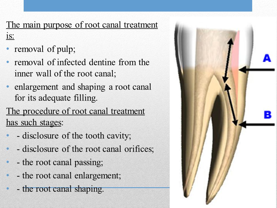 The main purpose of root canal treatment is: removal of pulp; removal of infected dentine from the inner wall of the root canal; enlargement and shapi