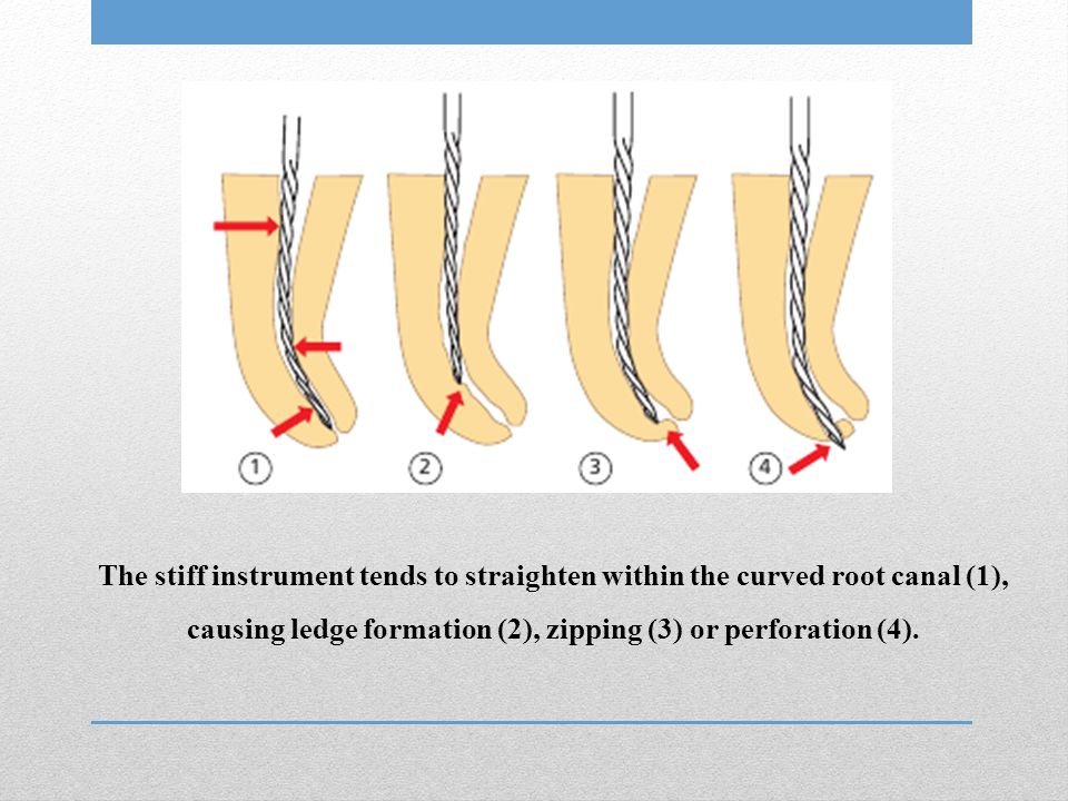 The stiff instrument tends to straighten within the curved root canal (1), causing ledge formation (2), zipping (3) or perforation (4).
