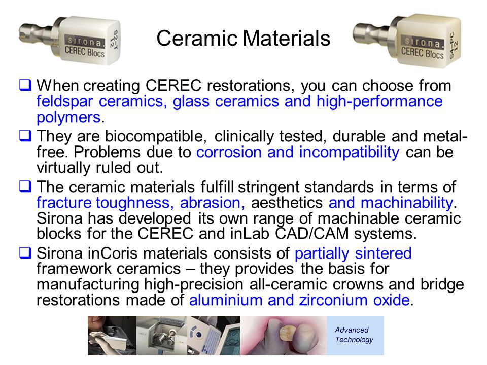 Ceramic Materials  When creating CEREC restorations, you can choose from feldspar ceramics, glass ceramics and high-performance polymers.  They are