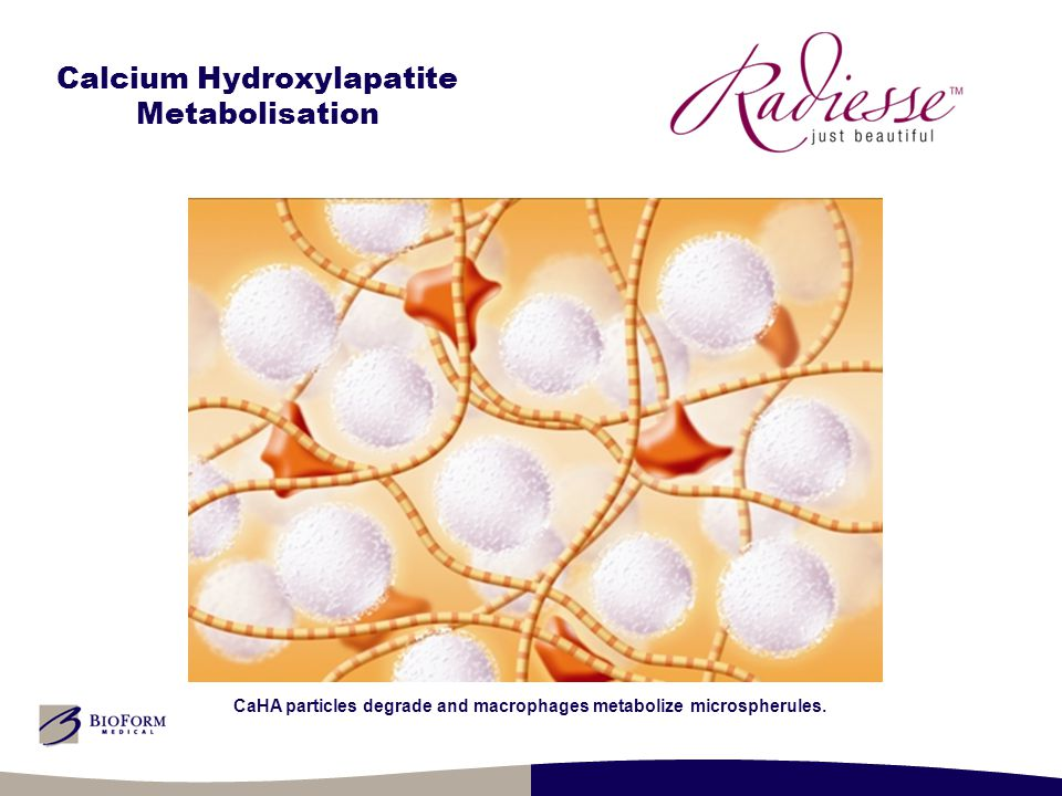 Calcium Hydroxylapatite Metabolisation CaHA particles degrade and macrophages metabolize microspherules.