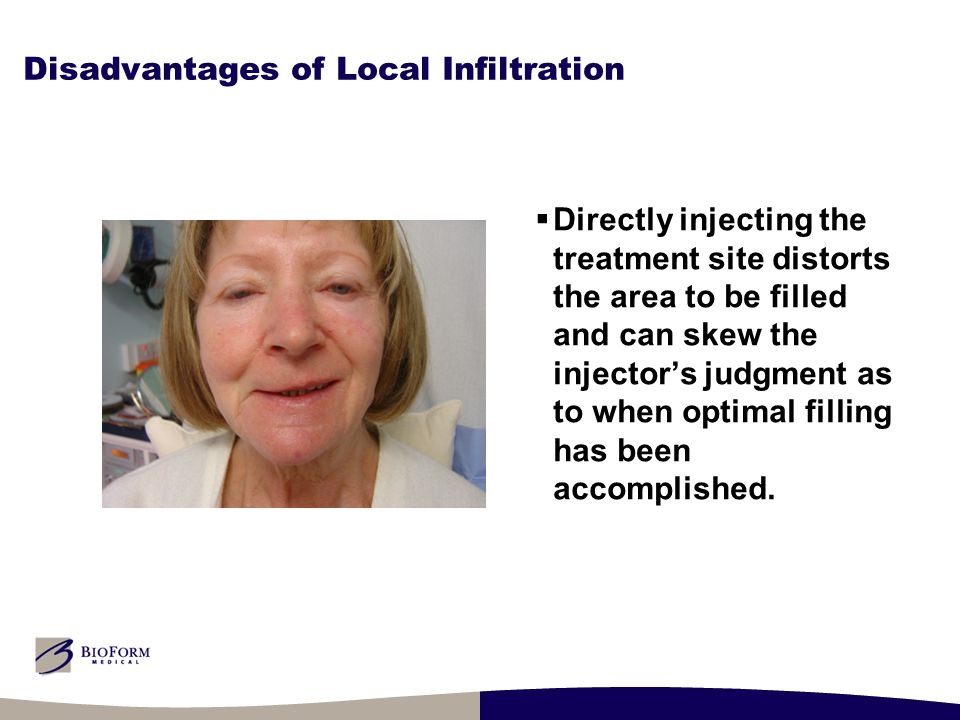 Disadvantages of Local Infiltration  Directly injecting the treatment site distorts the area to be filled and can skew the injector's judgment as to