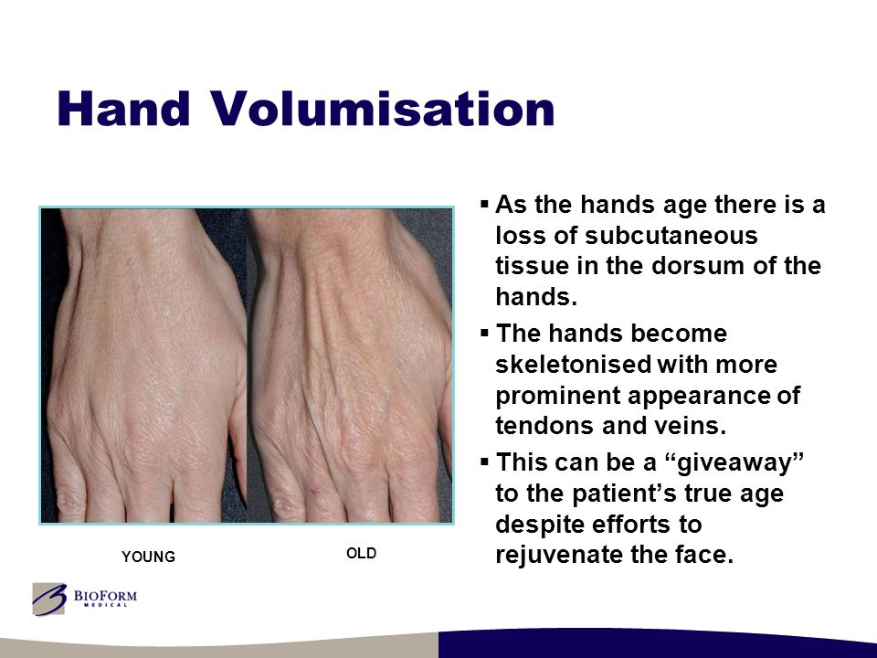 Hand Volumisation  As the hands age there is a loss of subcutaneous tissue in the dorsum of the hands.  The hands become skeletonised with more prom