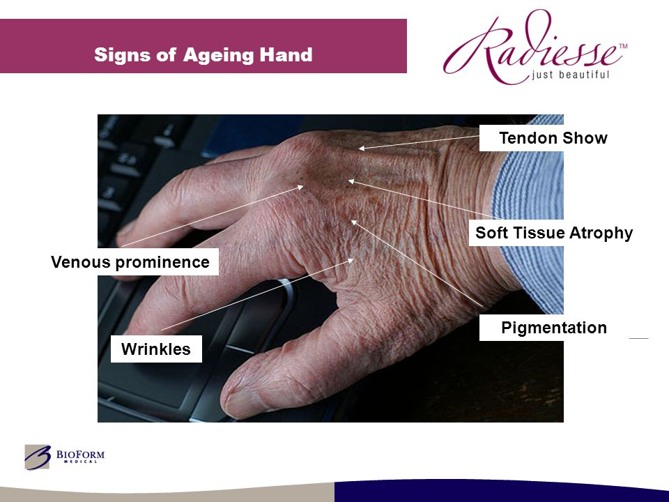 Signs of Ageing Hand Soft Tissue Atrophy Pigmentation Venous prominence Tendon Show Wrinkles